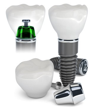 implantologia prezzi,prezzi implantologia,costi implantologia,i costi della implantologia,implantologia dentaria prezzi,prezzi implantologia dentaria,prezzi implantologia dentale
